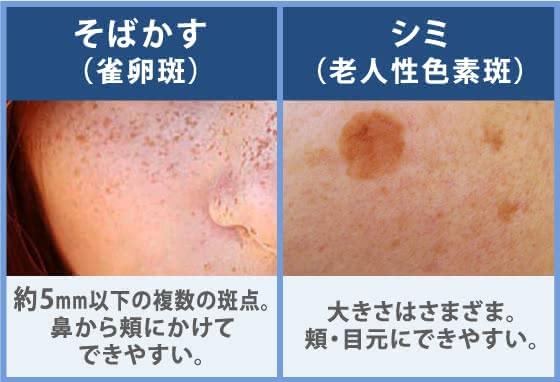 シミ 消し 皮膚 科