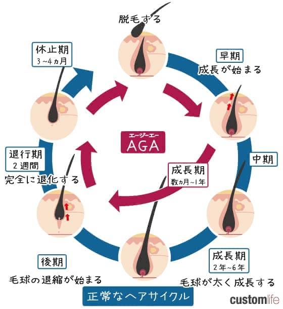 aga,札幌