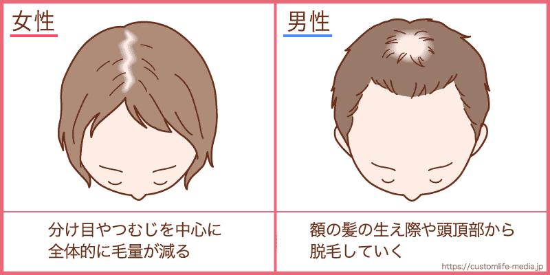 女性,薄毛,治療