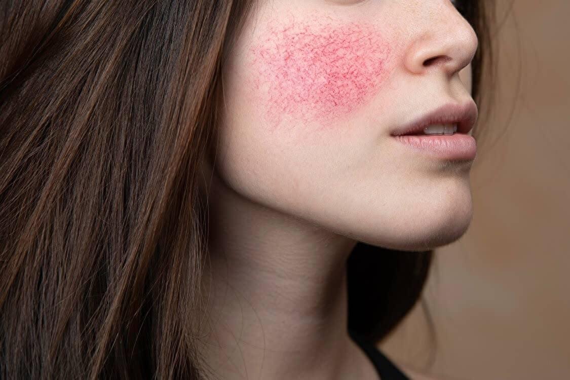 消す 方法 の 顔 赤み を photoshopで肌の赤みをとる方法ならこれだっ!