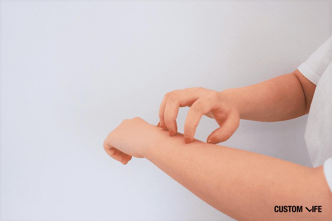 乾燥,肌,原因,対策,症状