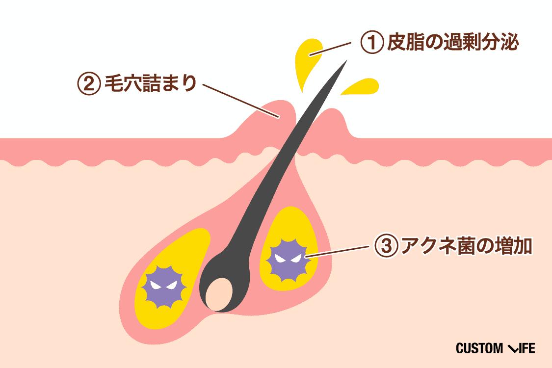 ニキビの原因は①皮脂の過剰分泌②毛穴詰まり③アクネ菌の増加です