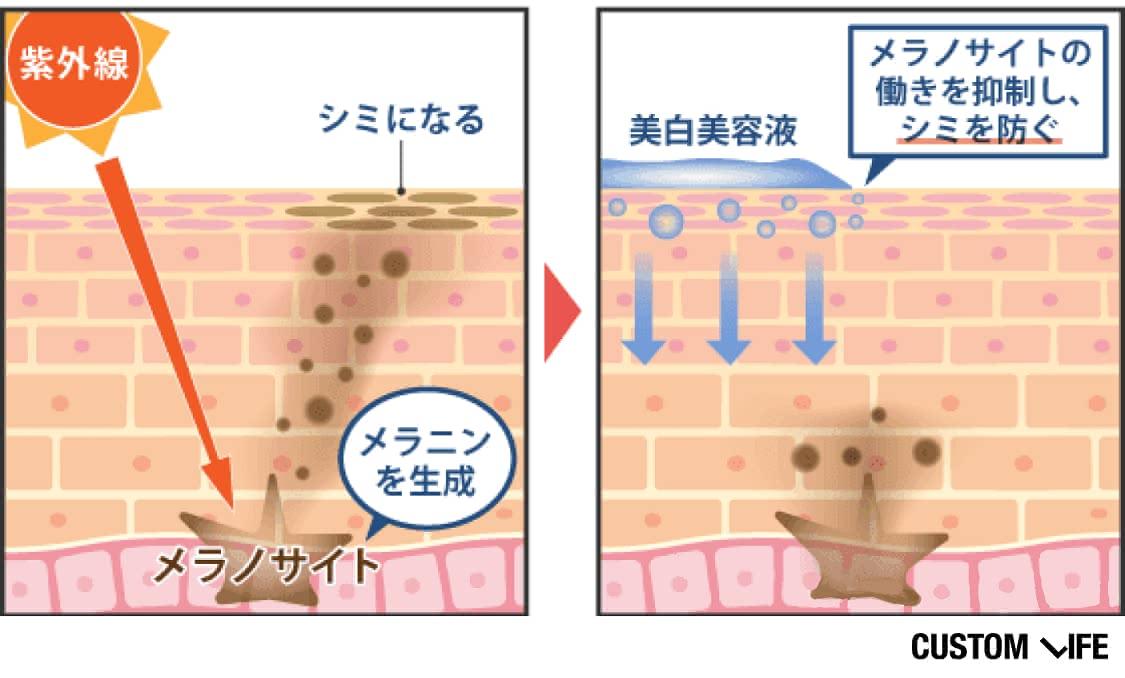 美白美容液は、メラニン(シミのもと)をつくるメラノサイトの働きを抑制してシミを防ぐ