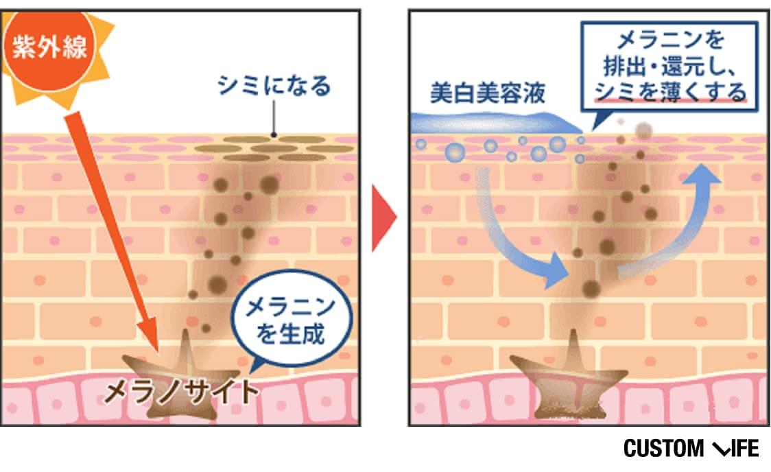 美白美容液は、メラニン(シミのもと)を排出・還元してシミを薄くする