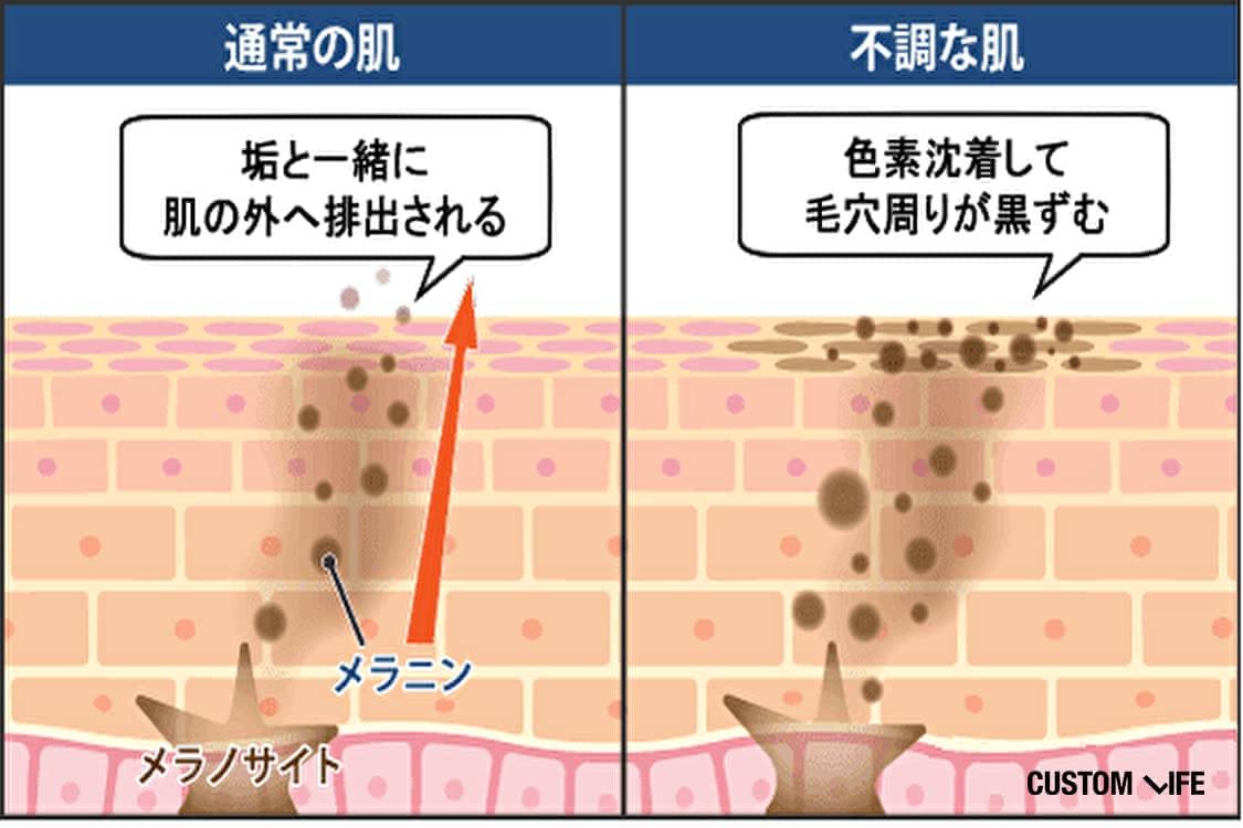 いちご,鼻,原因,対策,ケア,皮膚科