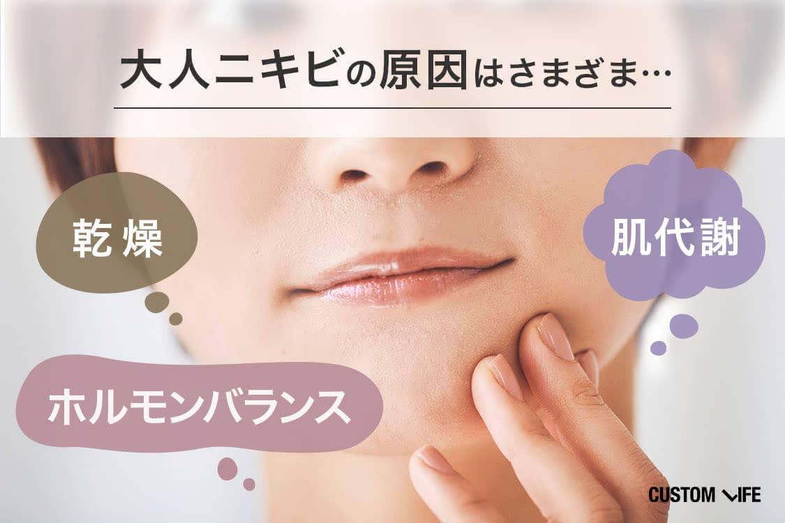 大人ニキビの原因は、ホルモンバランス、肌代謝、乾燥などさまざま