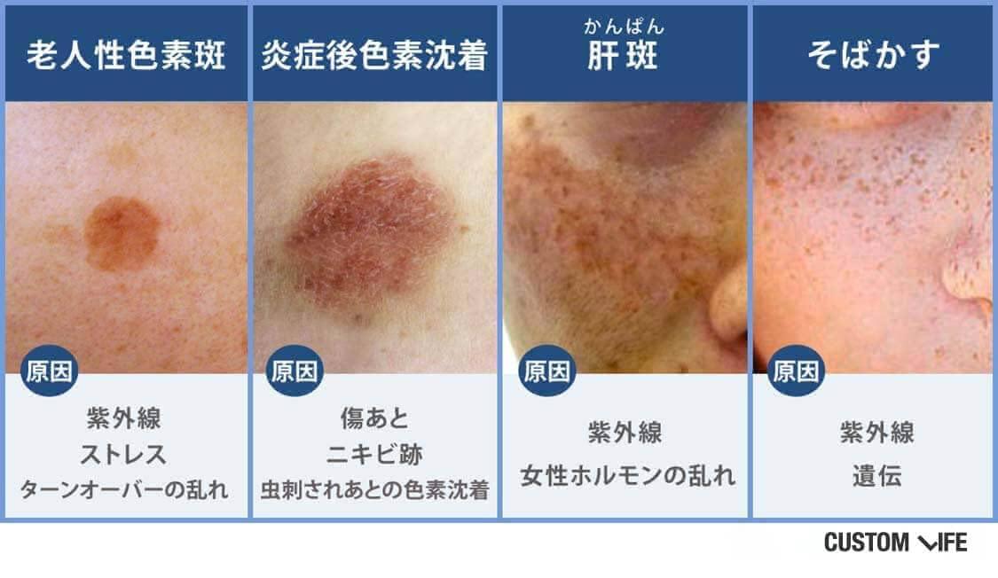 老人性色素斑、炎症後色素沈着、肝斑、そばかす