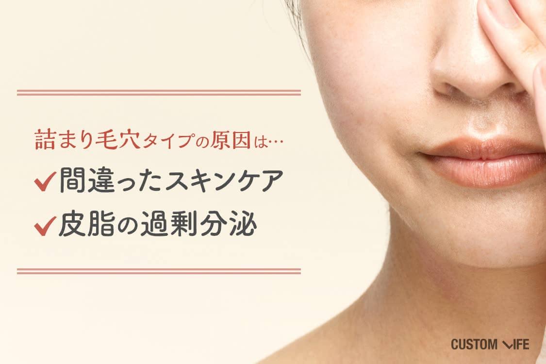 詰まり毛穴タイプの原因は間違ったスキンケアと皮脂の過剰分泌。