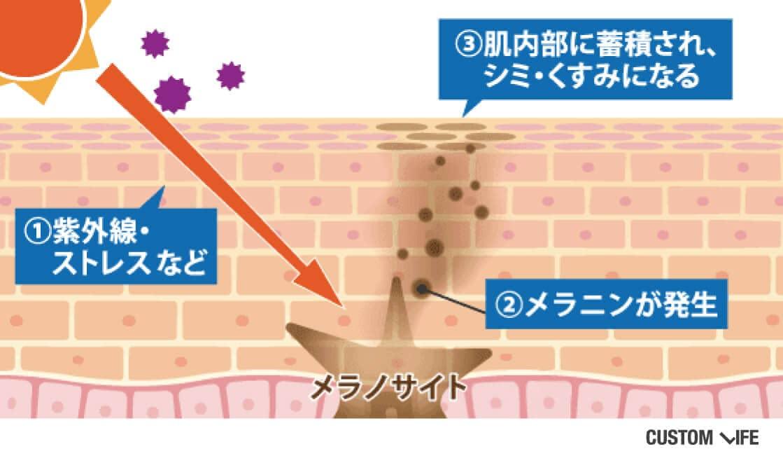 ①紫外線やストレスが肌にダメージを与える。②メラノサイトから、シミの元になるメラニンが発生。③肌内部にメラニンが蓄積し、シミ・くすみになる