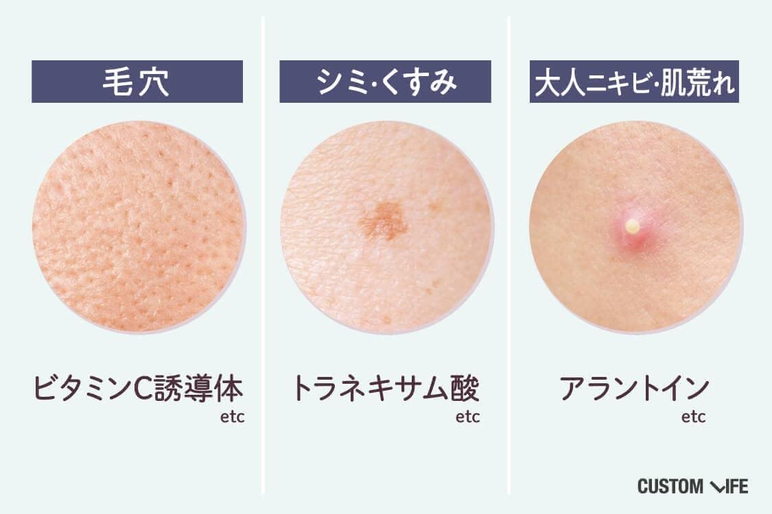 気になる肌悩みを対策しよう!毛穴=ビタミンC誘導体、くすみ=トラネキサム酸、大人ニキビ=アラントインetc…(3種のお悩み肌を配置)