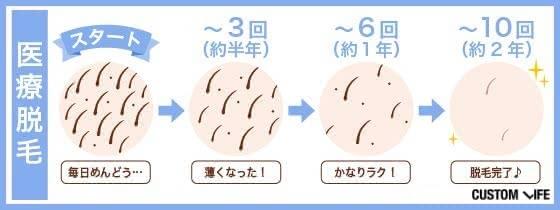 VIO医療脱毛の効果と回数(期間)