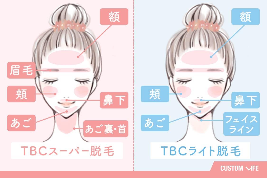 TBCスーパー脱毛は額、眉毛、頬、あご、鼻下、顎裏、首。TBCライト脱毛は額、頬、あご、鼻下、フェイスライン