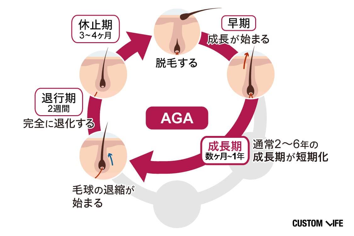 AGAで乱れたヘアサイクル