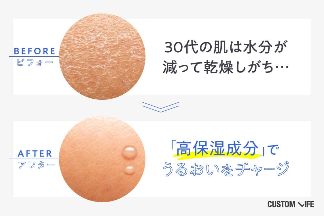 30代の肌は水分が減って乾燥しがち。高保湿成分でうるおいをチャージしよう