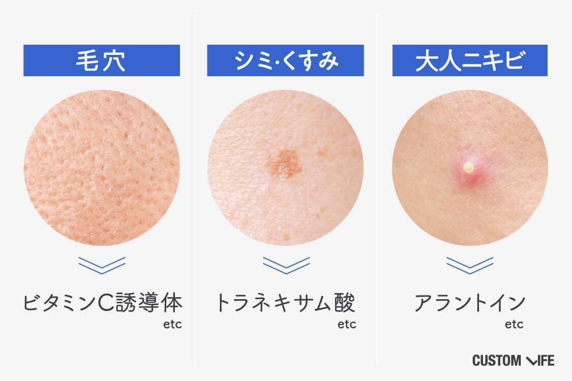 毛穴にはビタミンC誘導体、シミくすみにはトラネキサム酸、大人ニキビにはアラントインが効果的