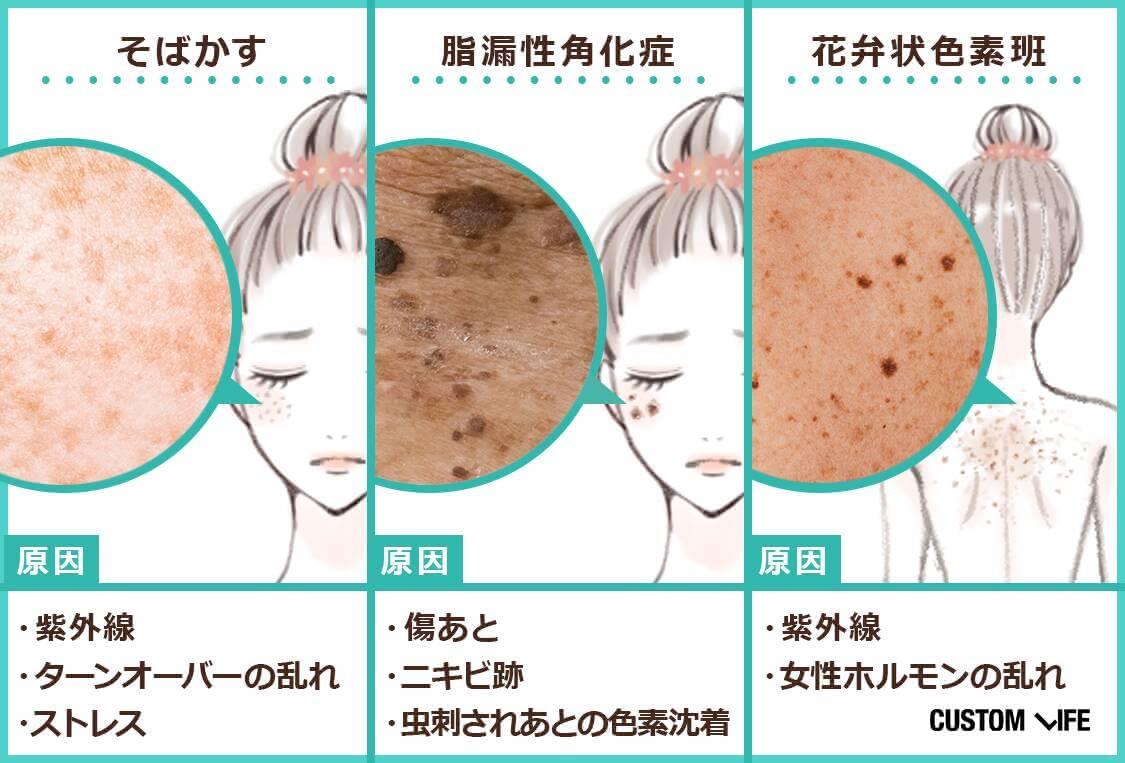 そばかす、脂漏性角化症、花弁状色素斑