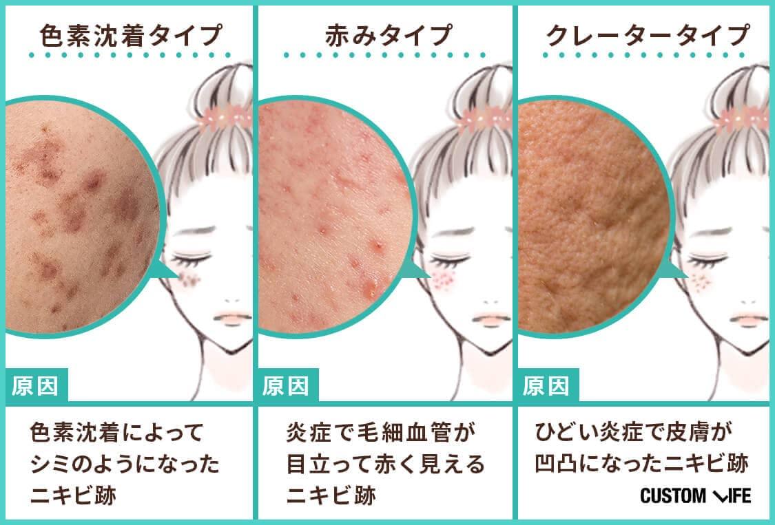 シミのようになった色素沈着タイプのニキビ跡、炎症で毛細血管が目立った赤みタイプのニキビ跡、ひどい炎症で皮膚が凹凸になったクレータータイプのニキビ跡
