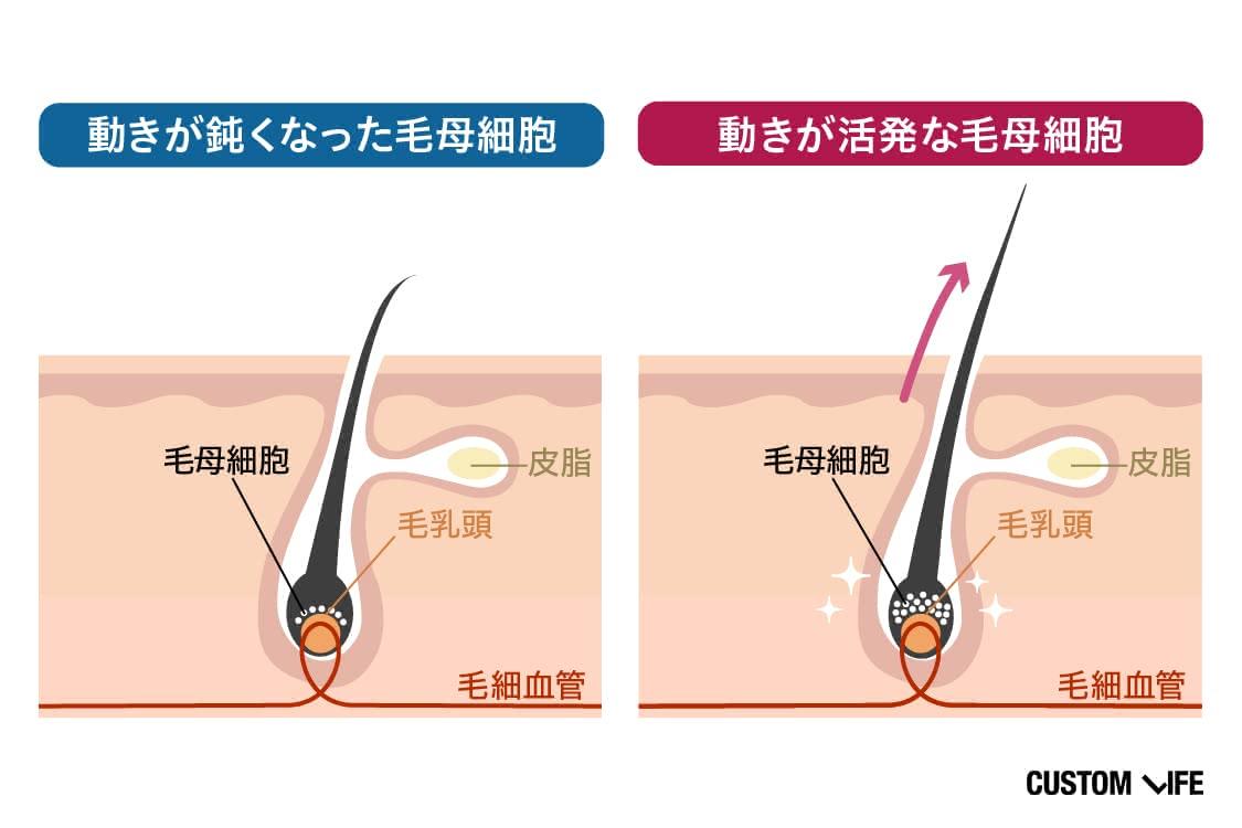 動きが鈍くなった毛母細胞と活発な毛母細胞