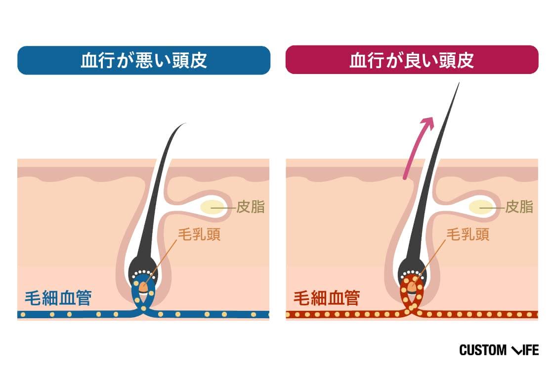 血行が悪い頭皮と血行が良い頭皮