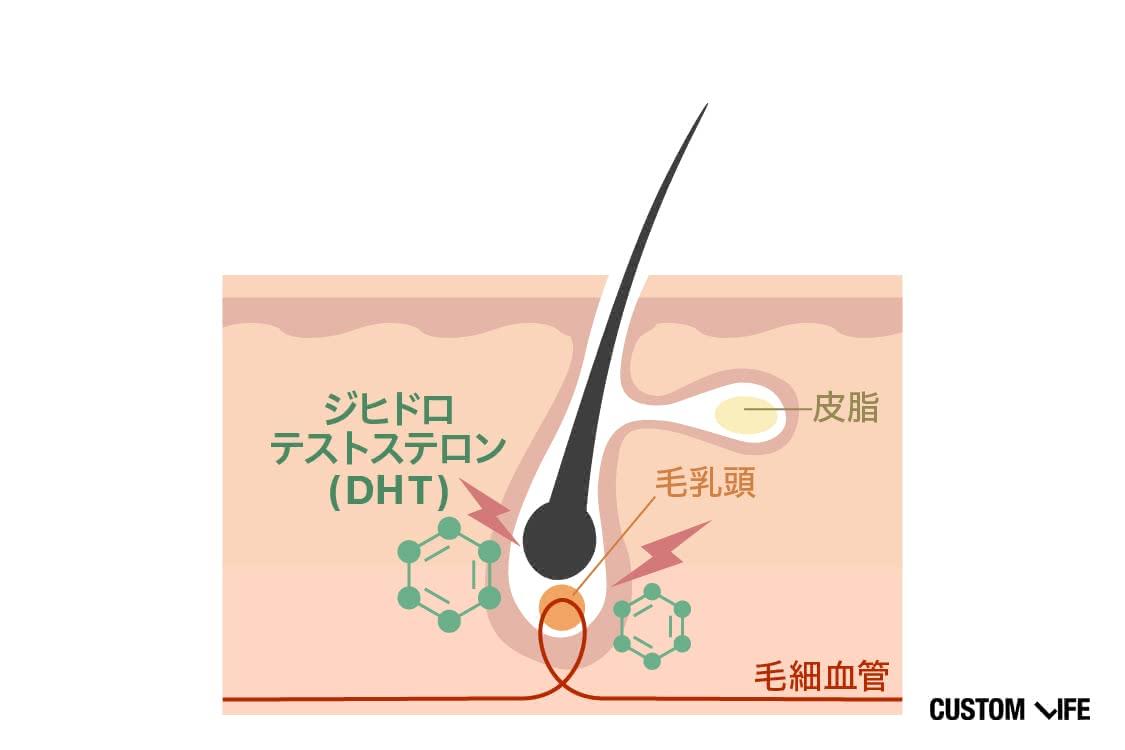 DHTが抜け毛を促すメカニズム