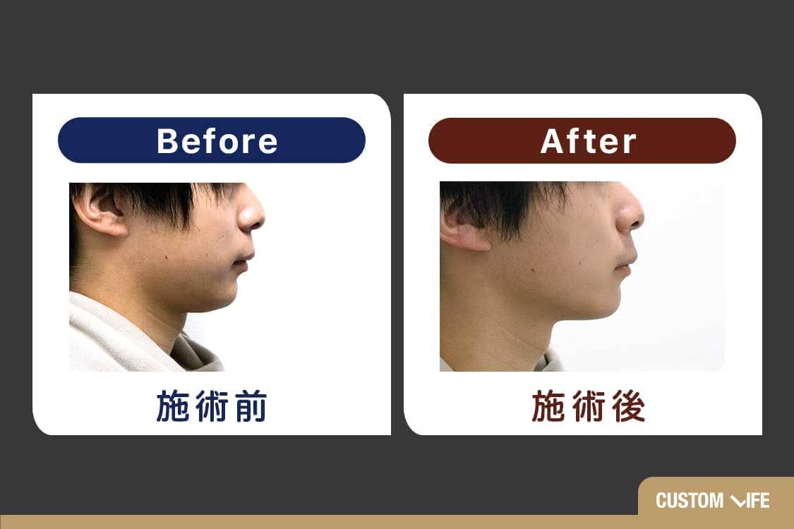 ゴリラ洗顔,効果