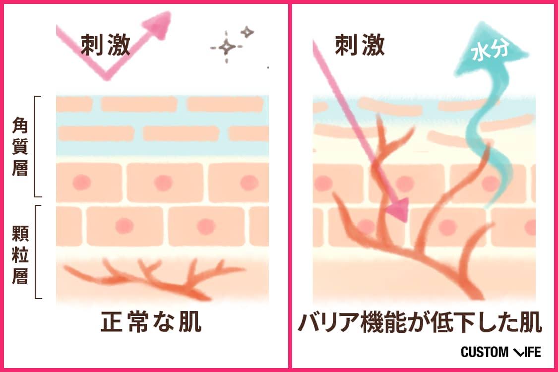 バリア機能が低下した肌と正常な肌の比較