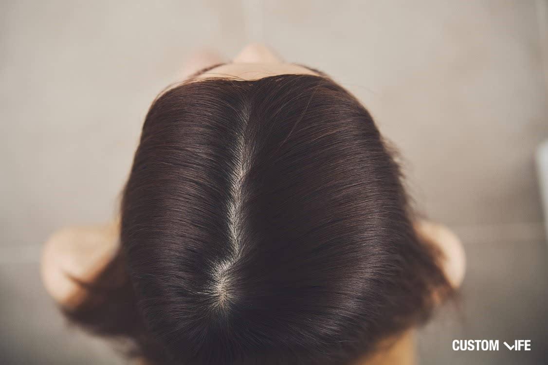 育毛剤 女性