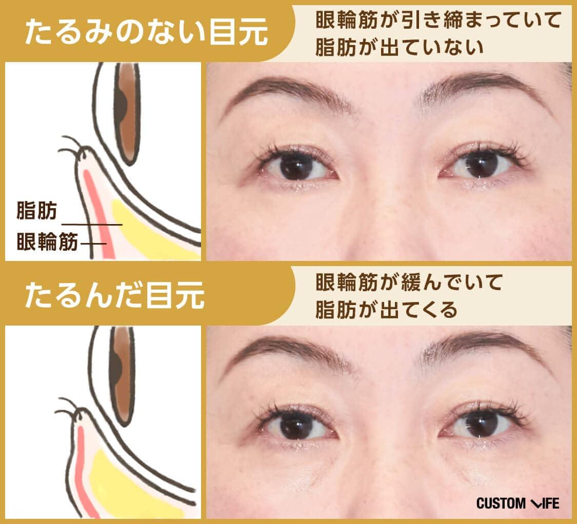 たるみの無い目元は眼輪筋が引き締まっていて脂肪が出ていないが、たるんだ目元は眼輪筋が緩んで脂肪が出てしまします。