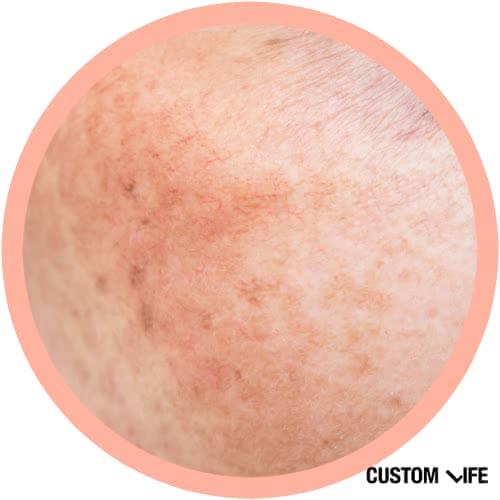 肝斑の画像